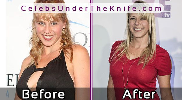 Jodie Sweetin's Boob Job? Before + After Photos Of Her ...
