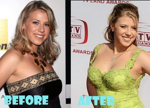 Jodie Sweetin Plastic Surgery Before and After Picture ...