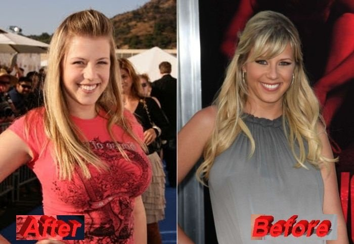 Jodie Sweetin admits going for Plastic Surgery - The Best ...