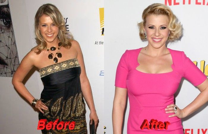 Looking at pictures before and after Jodie Sweetin plastic ...