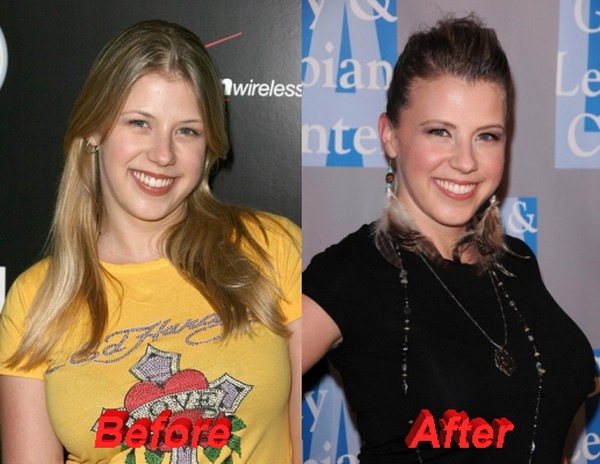 Jodie Sweetin admits going for Plastic Surgery