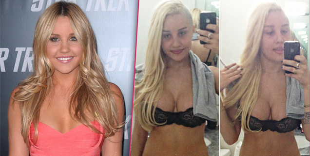 Amanda Bynes: 'I Got My Breast Implants Removed' | Radar Online